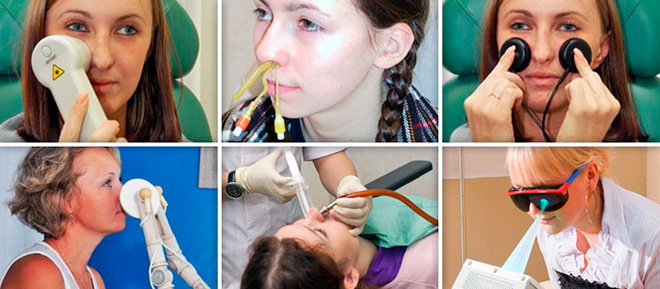 Физиотерапевтическое лечение гайморите