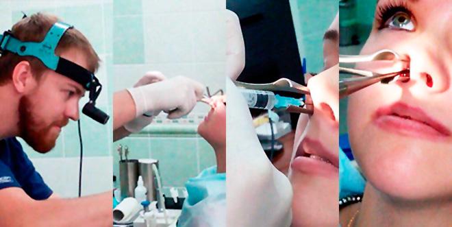 вазомоторный ринит операция