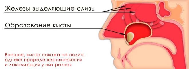 Что такое киста в носовой пазухе