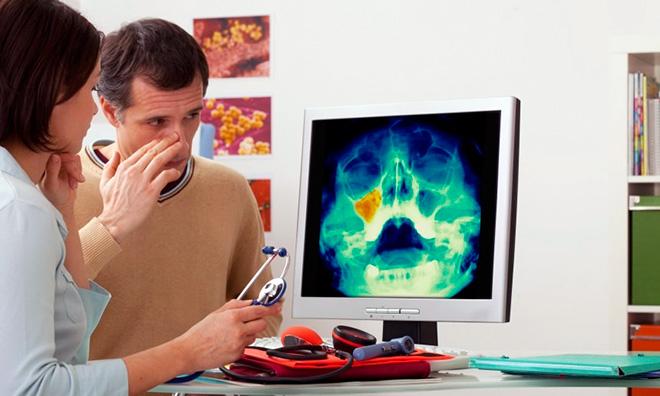 Лечение кисты в носовой пазухи