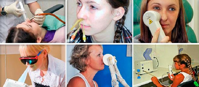 Физиотерапия носа