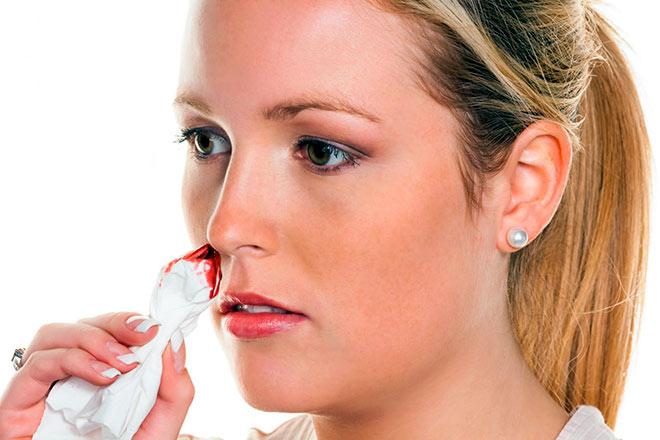 У девушки идет кровь носом