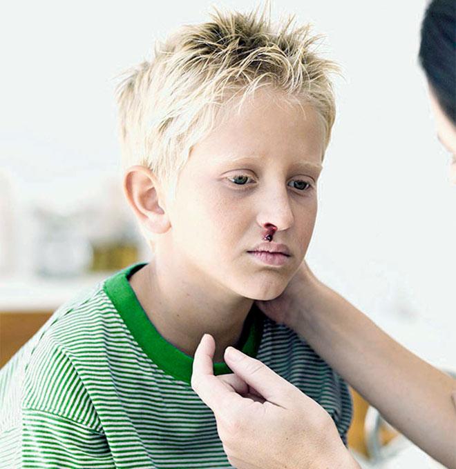 у подростка идет кровь из носа