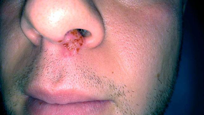 пневмония грибок в носу термобелье выполняет три