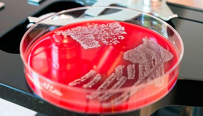 бактерии золотистого стафилококка