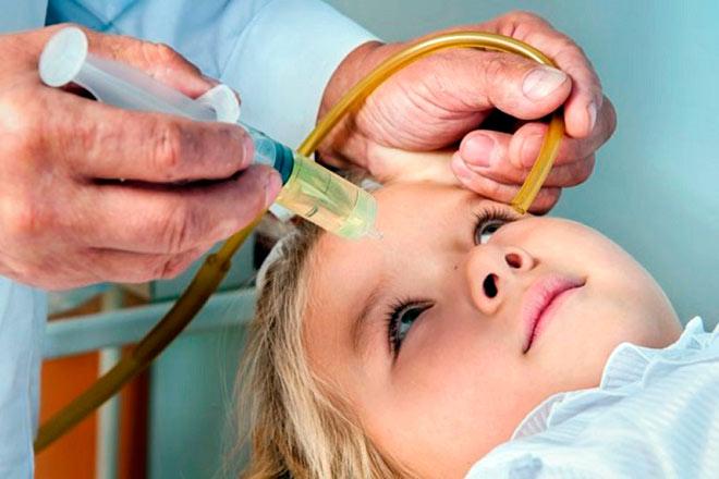 При лечение насморка у ребенка, часто назначают процедуру кукушка (промывание)