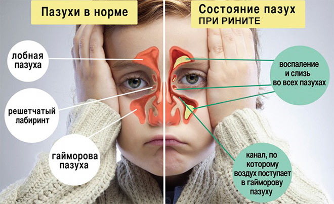 Причина возникновения насморка у ребенка