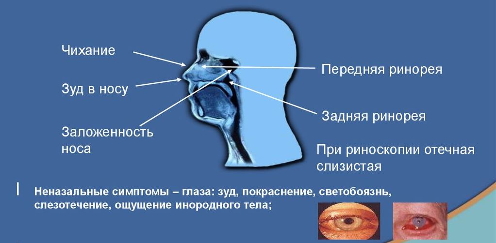 Как лечить аллергический отек носа