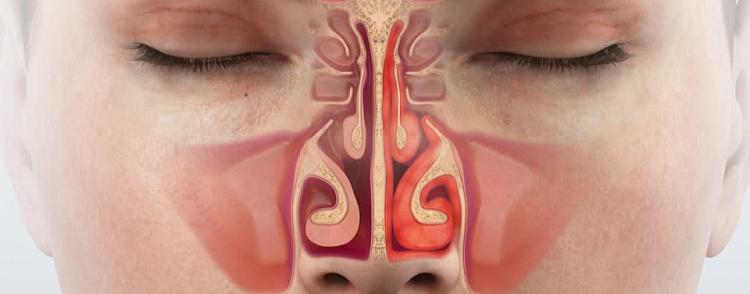 Что такое острый аллергический ринит